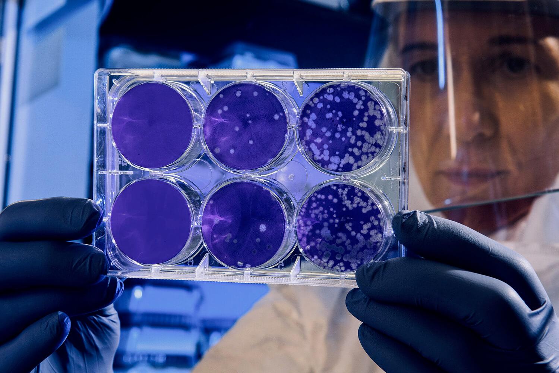 Het Sluipende Gevaar Van Antibioticaresistentie